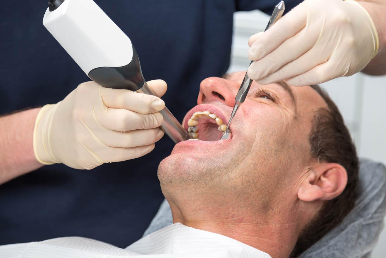 Diş Renginde Estetik Restorasyonlar